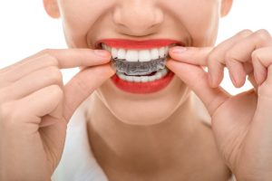 Why should I get Invisalign in Harker Heights?