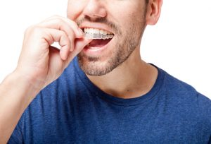 Invisalign in Harker Heights Expectations.