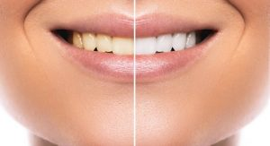 Get a bright smile with at-home teeth whitening in Harker Heights.