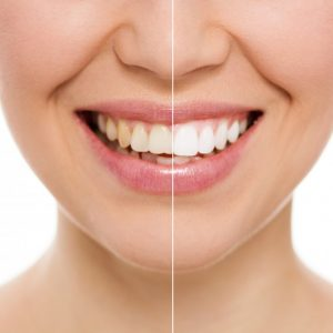 teeth whitening from dentist in Harker Heights